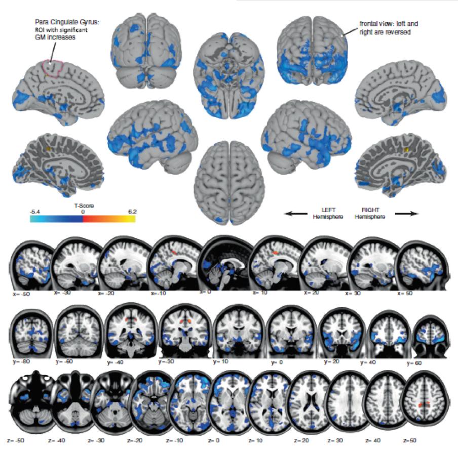 astronaut-mri-brain-shape