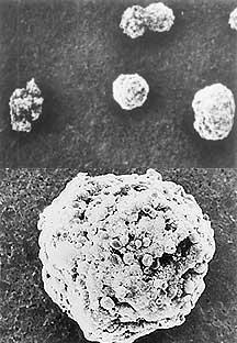 Komórki guzów jajnika